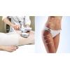 Лазерные процедуры и LPG,  маникюр,  педикюр,  стрижка,  окрашивание скидка 25%